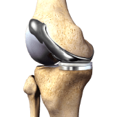 Custom Knee Replacement