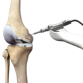 Mako Robotic-Arm Assisted Technology for Total Knee Replacement